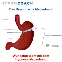 Das Hypnose Magenband - Das Hypnotische Magenband